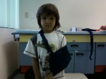 Our first broken bone - the clavicle.